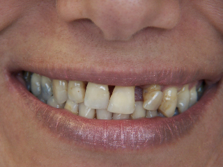 Veneers and crowns before picture